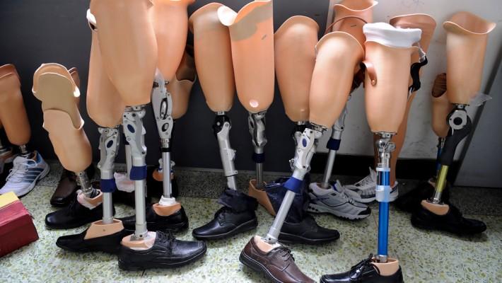 Ortopédiai segédeszközök, művégtagellátás