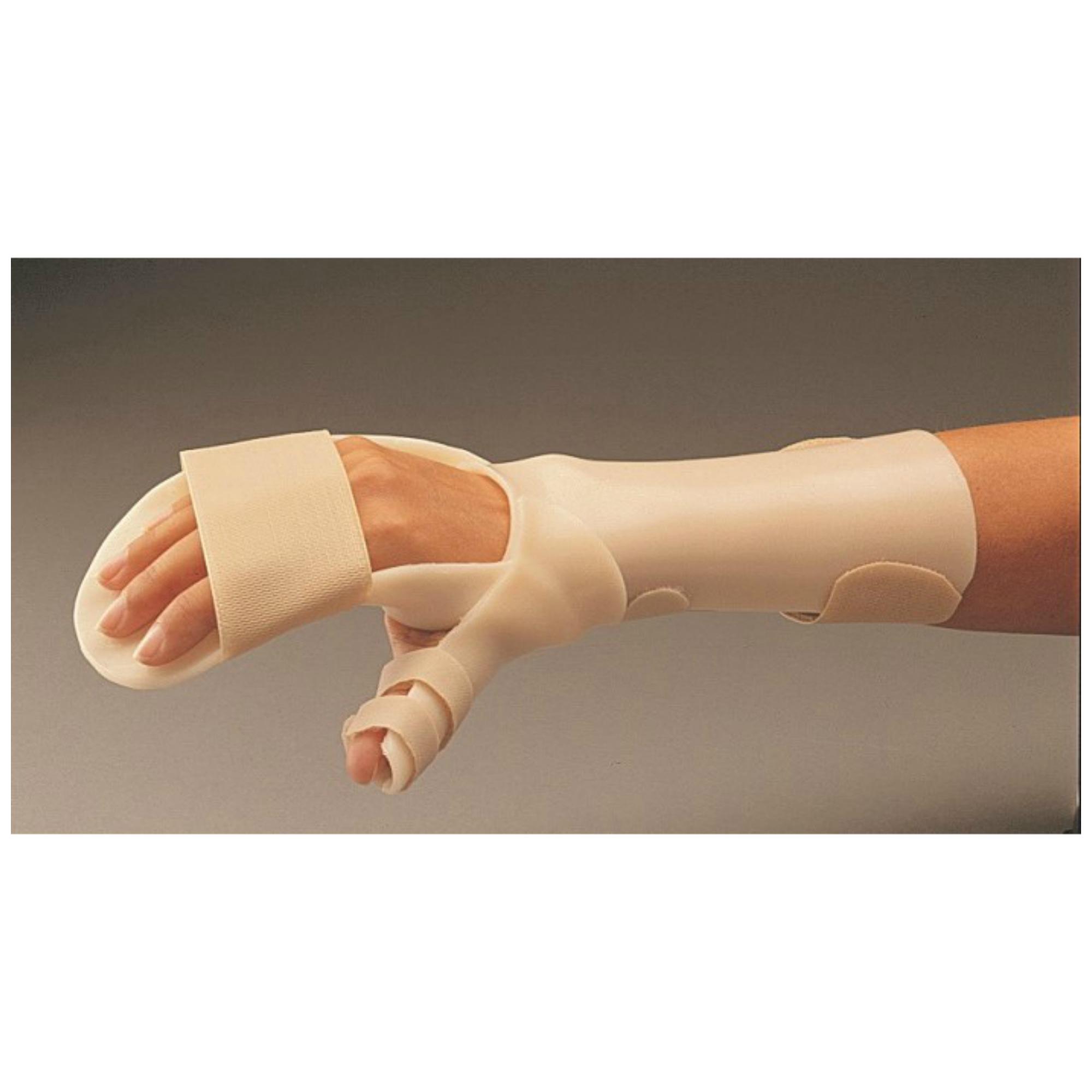 Arthritisz, avagy mi is az ízületi gyulladás?