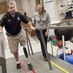 Ortézisek, protézisek készítése