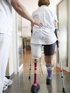 Protézis Készítés