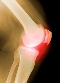 kifejezés ízületi betegség a lábujjak artrózisa, tünetei és kezelése